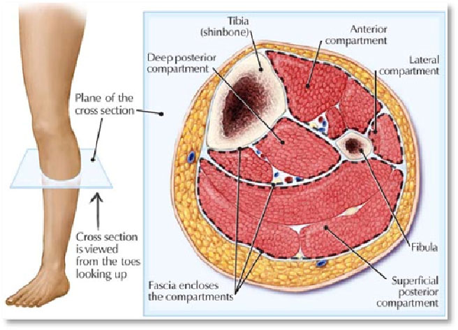 Chronic Compartment Syndrome Kingsley Physio More Than Your