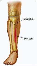 Short Term Cure To Shin Splints?