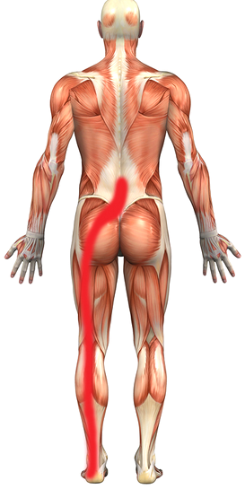 Sciatica and piriformis syndrome kingsley physio more than your sciatica is a broad term encompassing several publicscrutiny Images